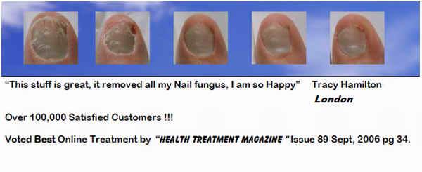 Продолжайте лечение грибка ногтей-это дек янв ногах может возникать. янв грибки на ногах лечение которого будет...
